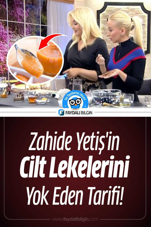 Zahide Yetiş\'in Cilt Lekelerini Yok Eden Maske Tarifi