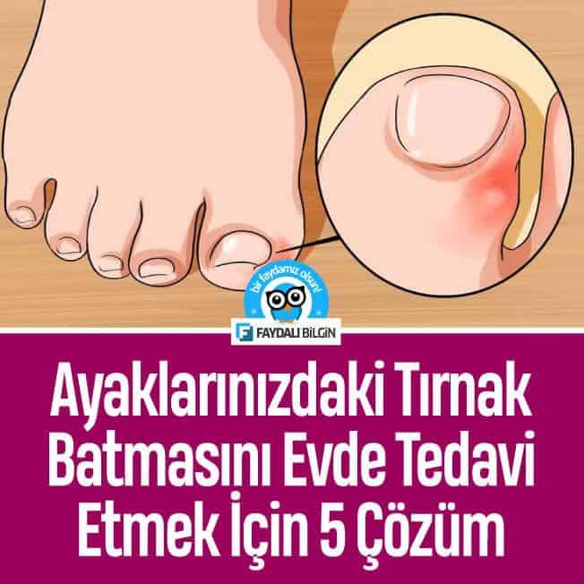 ayaklarinizdaki tirnak batmasini evde tedavi etmek icin 5 cozum 1 2