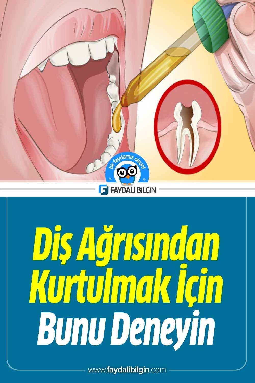 Diş ağrısından kurtulmak için mutlaka deneyin