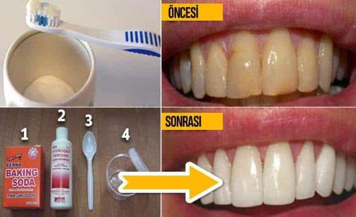 Plaktan Kurtulmanın ve Pahalı Tedaviler Olmadan Dişlerinizi Beyazlatma Çözümleri