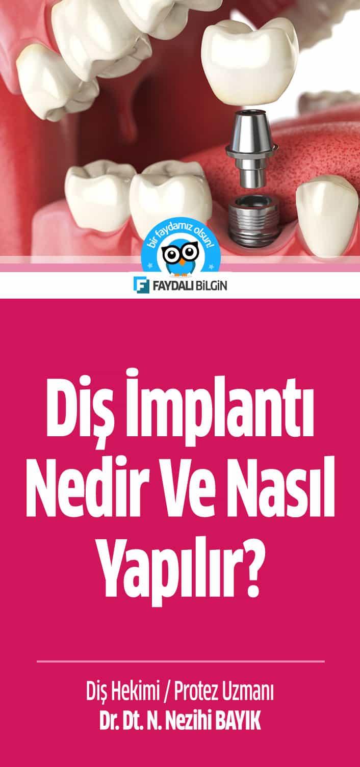 Diş implantı nedir ve nasıl yapılır?