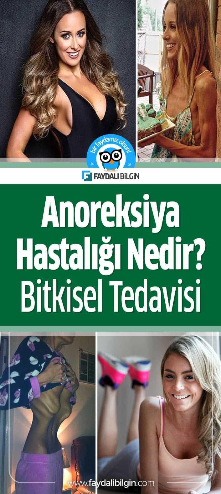 Anoreksiya Hastalığı Nedir, Belirtileri nelerdir? Neden kaynaklanır ve Bitkisel Tedavisi yöntemleri nelerdir? Anoreksiya hakkında herşey.<div class=