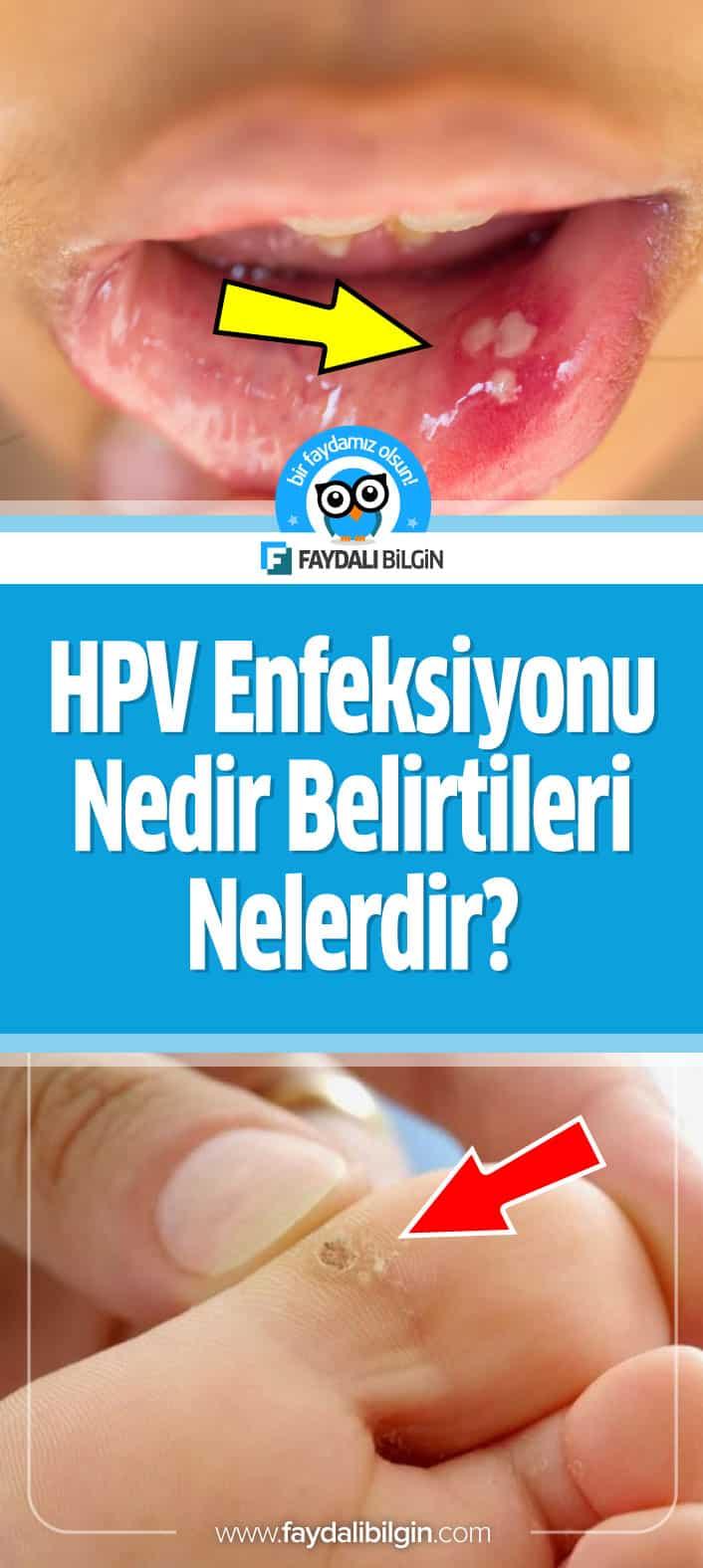 HPV Enfeksiyonu; kadınlarda ve erkeklerde cinsel yol ile bulaşan genital siğil virüsü sonucu ortaya çıkar. HPV Enfeksiyonu Nedir Belirtileri Nelerdir? #hpv #hpvenfeksiyonu #kadın #erkek #cinsel #bulaşıcı #siğil #virüs #sağlık