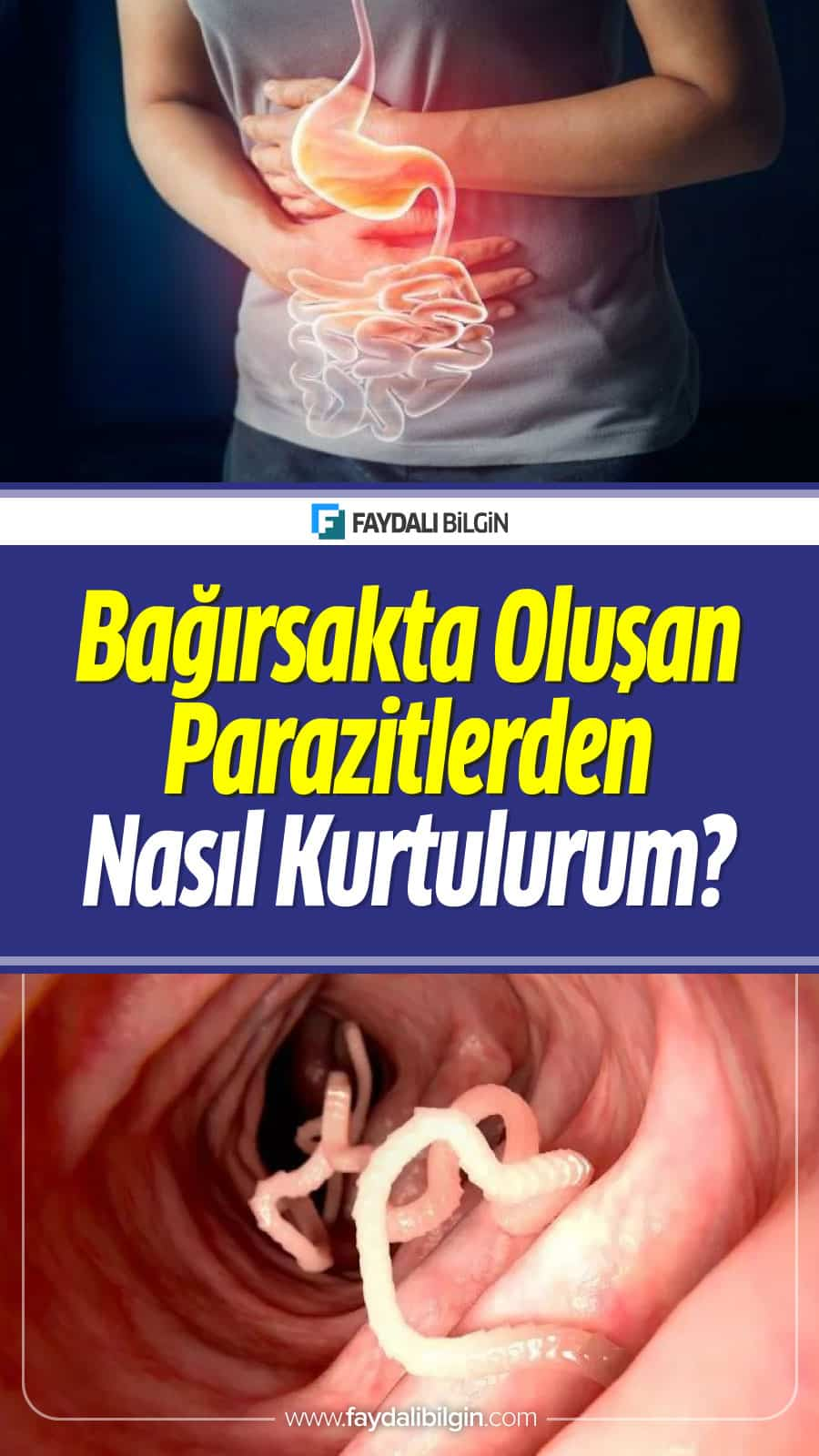 Amip Parazit Tedavisi Bağırsakta Oluşan Parazitler