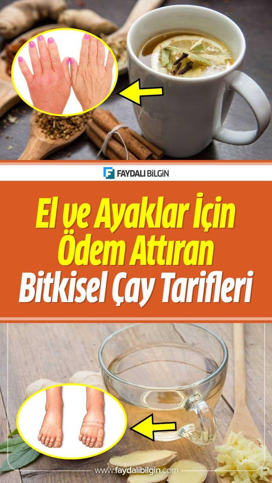 El ve Ayaklar İçin Ödem Attıran Bitkisel Çay Tarifleri; Ödem söktürücü tarifler, Zencefil çayı tarifi, Mısır Püskülü Çayı Tarifi.