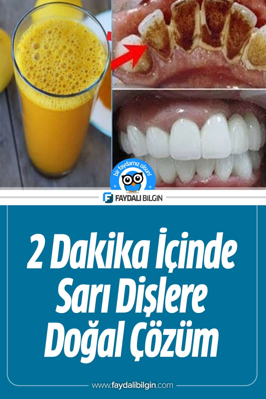 2 Dakika İçinde Sarı Dişlere Ev Yapımı Doğal Çözüm