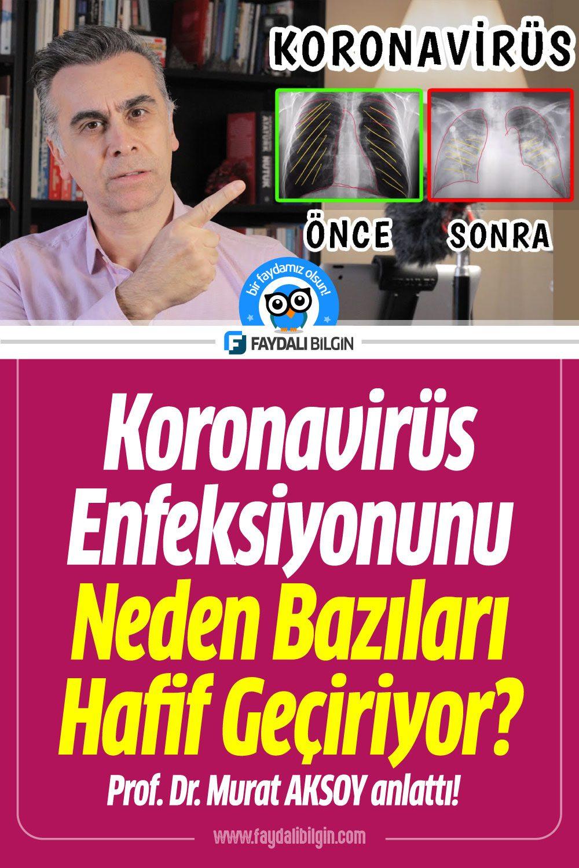Koronavirüs enfeksiyonunu Neden Bazıları Hafif Geçiriyor?